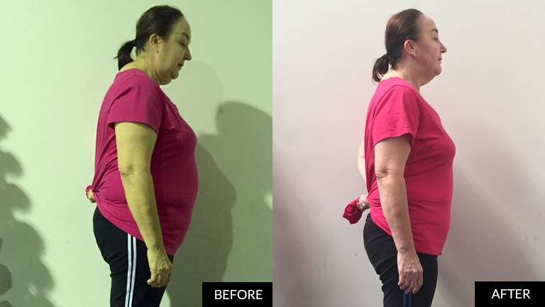 before-after-maree